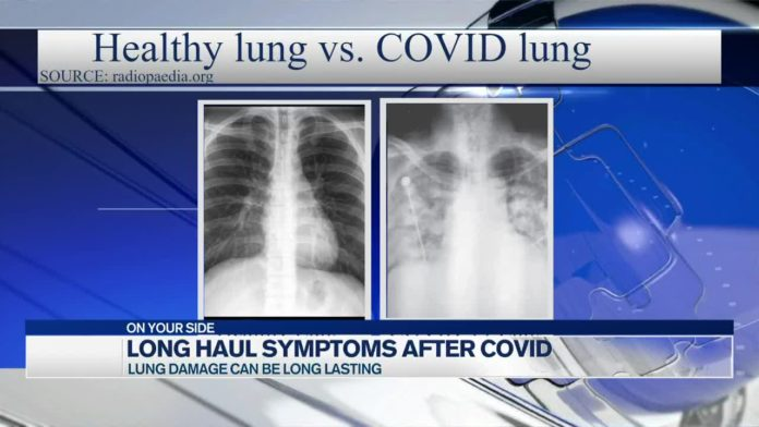 COVID patients have persistent symptoms weeks or months after diagnoses